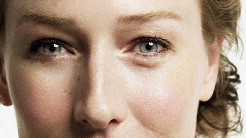 "Causes of ""puffy eyes"" and methods of treatment"