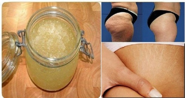 Strong Homemade Scrub Made Of Salt And Sugar That Helps Against Stretch Marks And Cellulite!