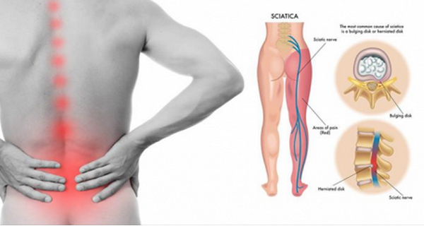 Get Rid Of Sciatica Nerve Pain With This Excelent Techniques