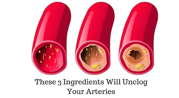 Make Excellent Coronary Arteries Cleanse with Just Three Ingredients