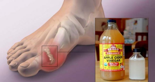 Uric Acid Crystallization Could Be a Big Problem: Prevent Gout and Joint Pain with This Tips and Tricks