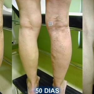 DIY: This Marvelous Mix Will Heal Your Varicose Veins