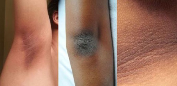 Do You Have Dry and Dark Skin on Your Knees, Elbows or Neck? Remove it with These Recipes