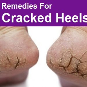 Do You Have a Problem with Cracked Heels? Solve It with These 10 Tricks