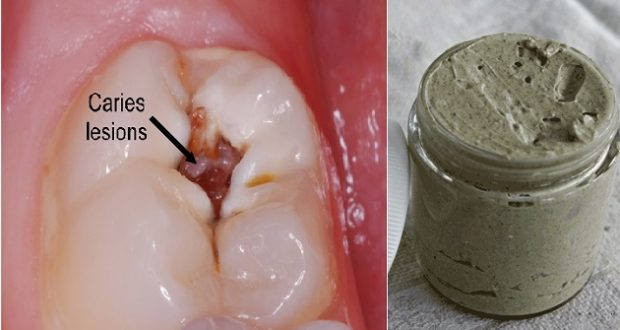 Keep Your Mouth Clean and Healthy with This Natural Toothpaste (recipe)