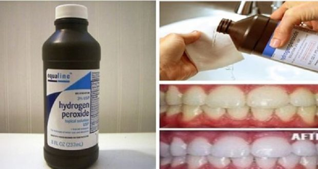 How to Use Hydrogen Peroxide in 24 Incredible Ways