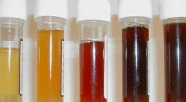 The Color of Urine Reveals the Condition of the Body