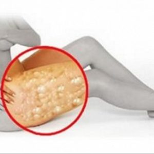 Get Rid of the Cellulite With Just Apple Cider Vinegar
