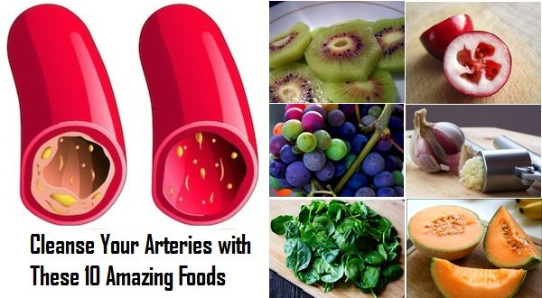 Cleanse Your Arteries with These 10 Amazing Foods