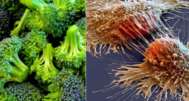 Destroy Cancer with These Eight Amazing Foods