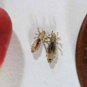 Get Rid Of Those Annoying Head Lice With Just a Few Ingredients