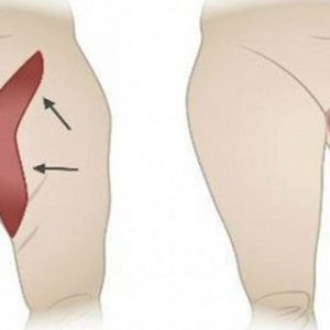 Get Rid Of Your Inner Thigh Fat With These Effective Workouts