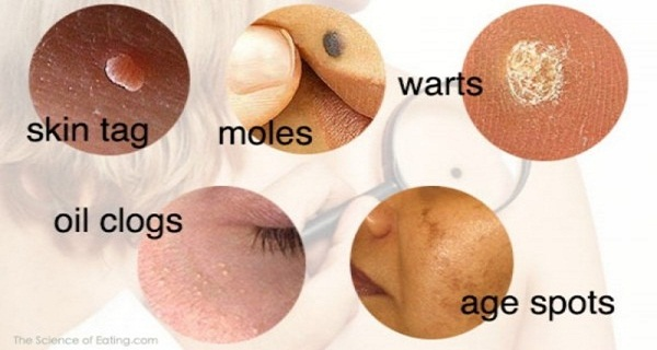 If You Have Problems With Warts, Moles And Blackheads, You Can Solve Them With These Natural Ways