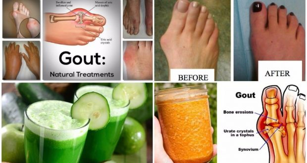 Say Goodbye to Arthritis With These Easy Home Remedies