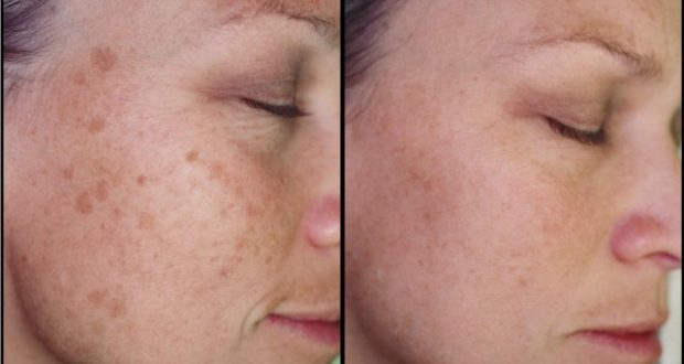 Remove Brown Spots From Your Skin With This Trick