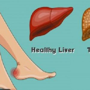14 Symptoms That Can Be a Warning about Your Liver