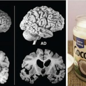 How Coconut Oil Can Help With Alzheimer, MS and Other Brain – Damaging Diseases!