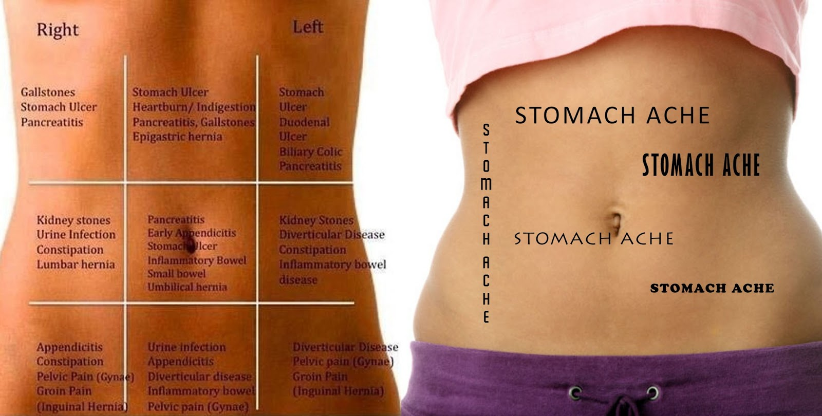 Stomach Pain Chart to Understand What Your Pain Tells You ...