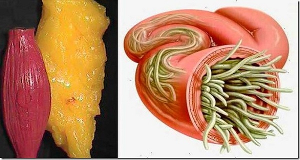 Throw Away All Deposits of Fat and Parasites From Your Body With These Two Ingredients