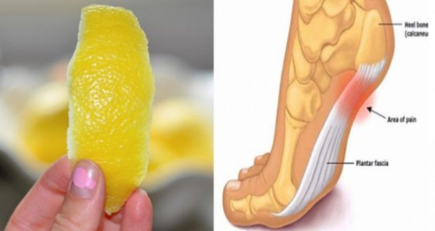 Did You Know That Lemon Peel Can Help You with Joint Pain?