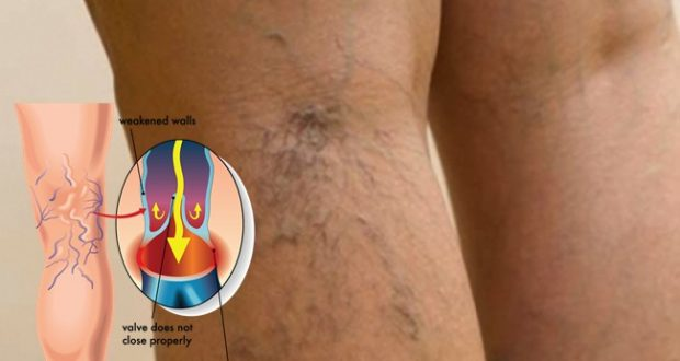 Do You Have Spider Veins? Here is How You Can Get Rid of Them!