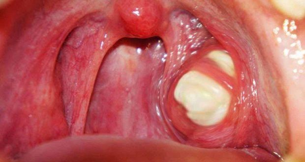Tonsils: What to Do When They Appear And How To Treat Them At Home