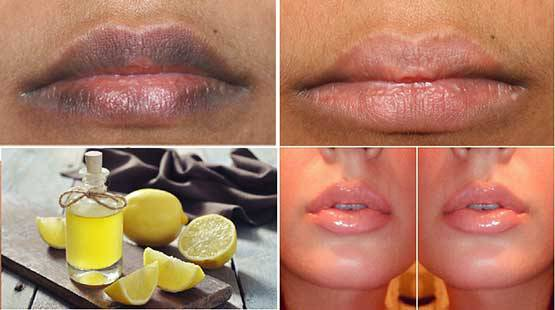 Make Your Lips Pretty and Soft Again with Just Two Ingredients
