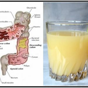 The Healthiest Cleansing and Antioxidant Tonic for The Colon!