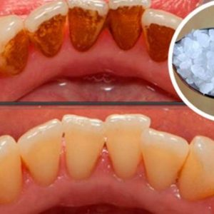 Use This Powerful Ingredient and Remove Tartar, Plaque and Bacteria from Your Mouth