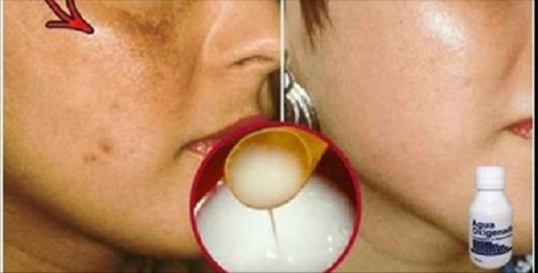 With This Homemade Recipe, Spots on Your Faces Will Disappear