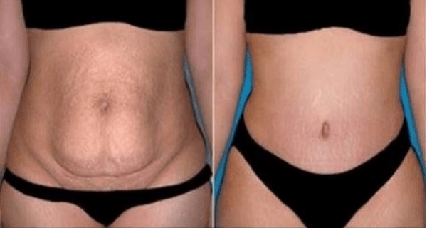 This Remedy Will Eliminate All Your Stubborn Belly Fat in Only 20 Days and You Just Need 10 Minutes to Make It