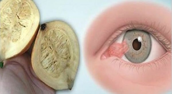 Get Rid of Your Glasses Once and for All with This Amazing Remedy