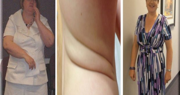 Find Out What Is The Difference Between Losing Weight And Losing Fat!