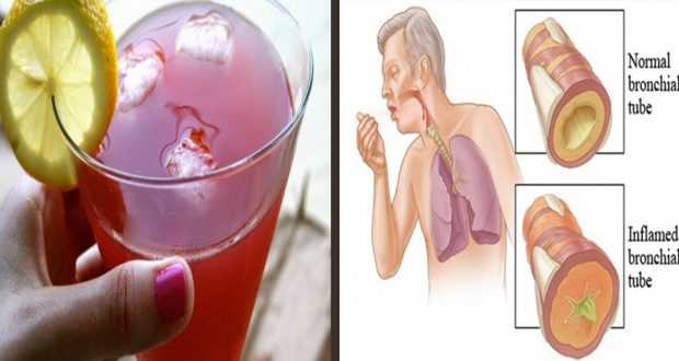 Easy and Healthy: Eliminate Sinus Problems and Mucus Congestion with This Remedy