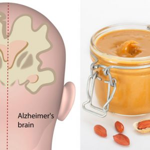 Here's How You Can Use Peanut Butter To Diagnose Alzheimer's Disease!