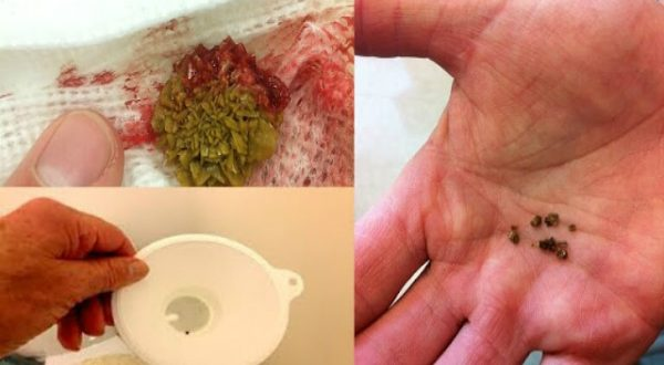 Use This Recipe to Throw Out Kidney Stones Immediately