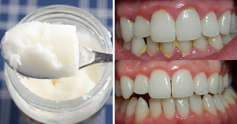 Leave Plaque, Bacteria and Bad Breath in the Past with One Ingredient
