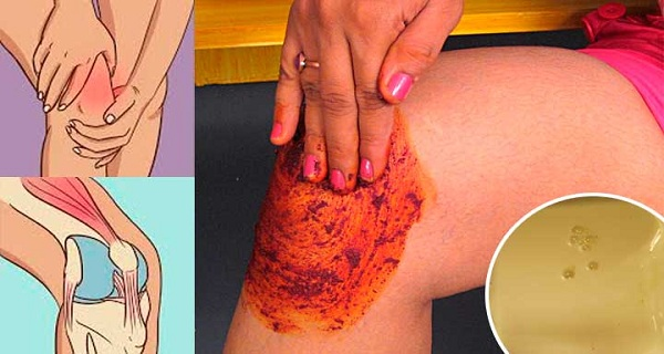 Good as New: Rebuild Damaged Bones and Joints with This Simple Remedy