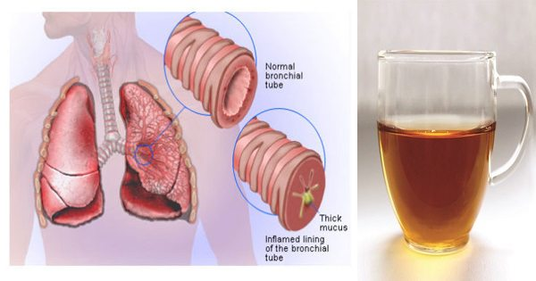 Eliminate Mucus, Inflammation, and Toxins with This Simple and Tasty Tea
