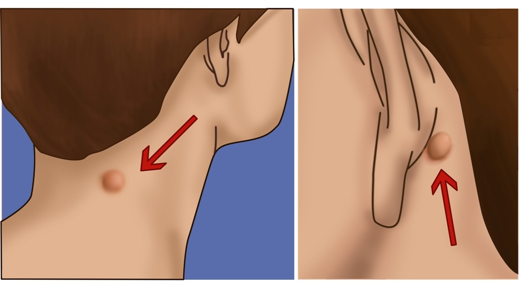 This is What Lump on Behind of Your Ear, Neck or Back Means
