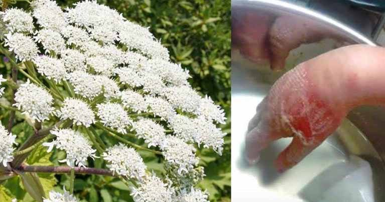 Be Careful: This Plant Can Cause Blindness and Burn Your Skin