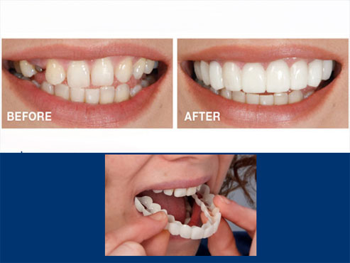 How To Make Your Smile White And Shiny In No Time!