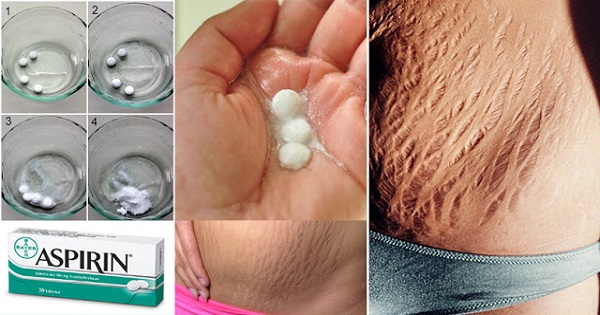 Top 3 Natural Remedies to Get Rid of Stretch Marks