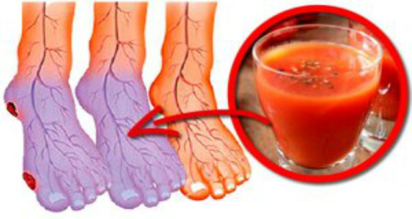 Cold Hands and Feet? 5 Natural Ways to Improve Poor Blood Circulation
