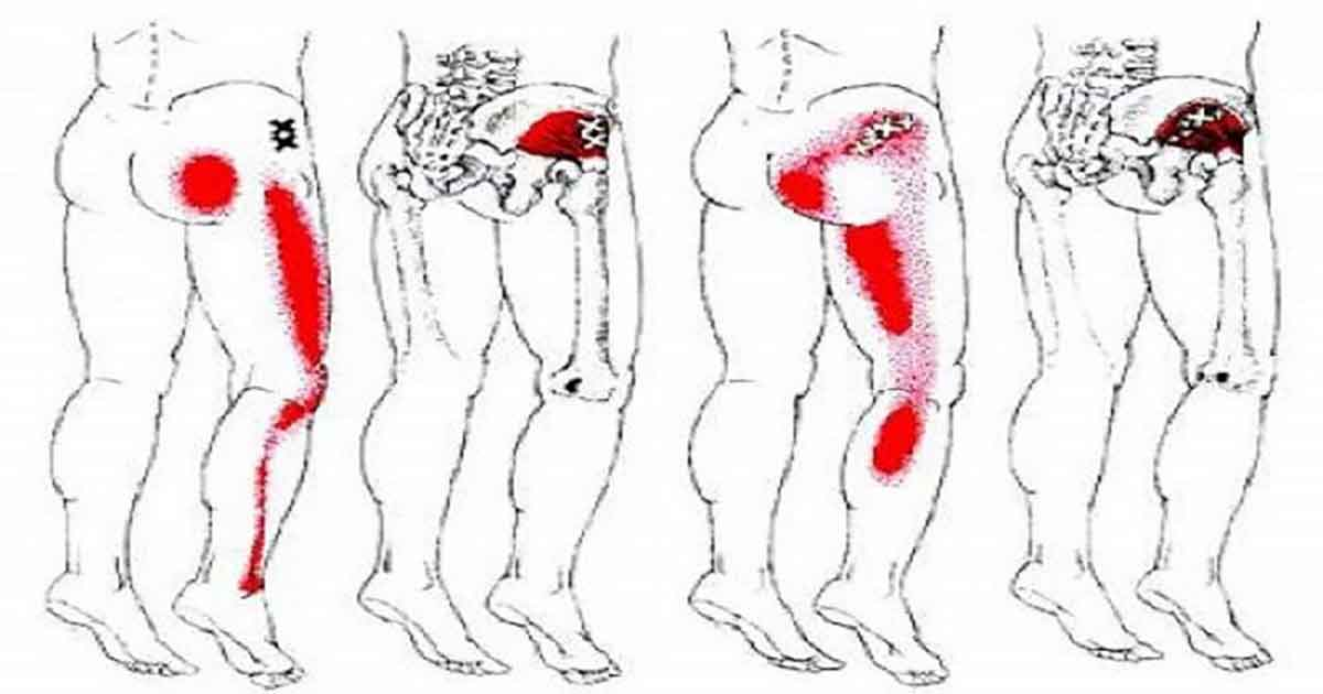 Sciatic Nerve Pain? Try This Effective Homemade Remedy