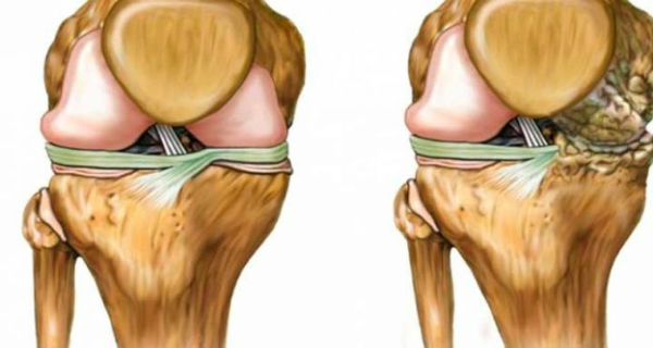 This Homemade Remedy Can Help With Osteoarthritis!