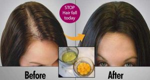 Amazing Keratin Mask Will Clean your Scalp And Boost Your Hair Growth